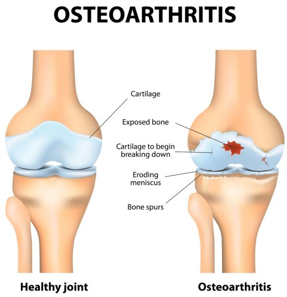 osteo-arthritis.jpg