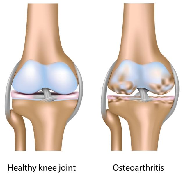 osteo_arthritis.jpg