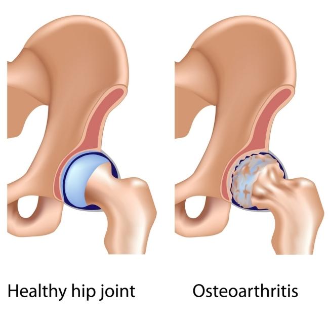 osteoarthritida.jpg