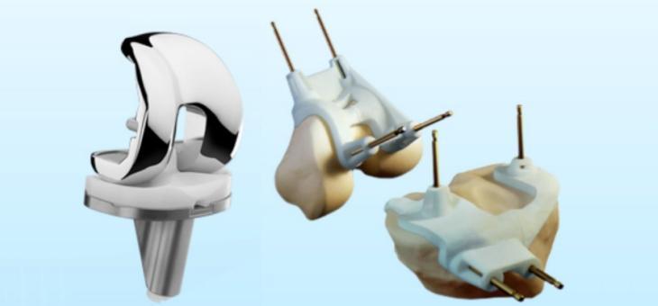 Total Knee Arthroplasty - PSI