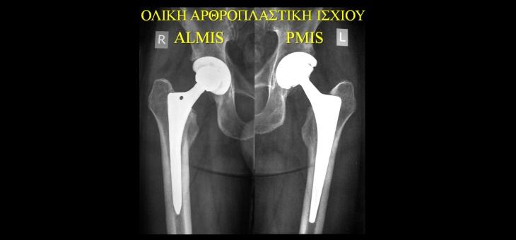 Full Hip Arthroplasty
